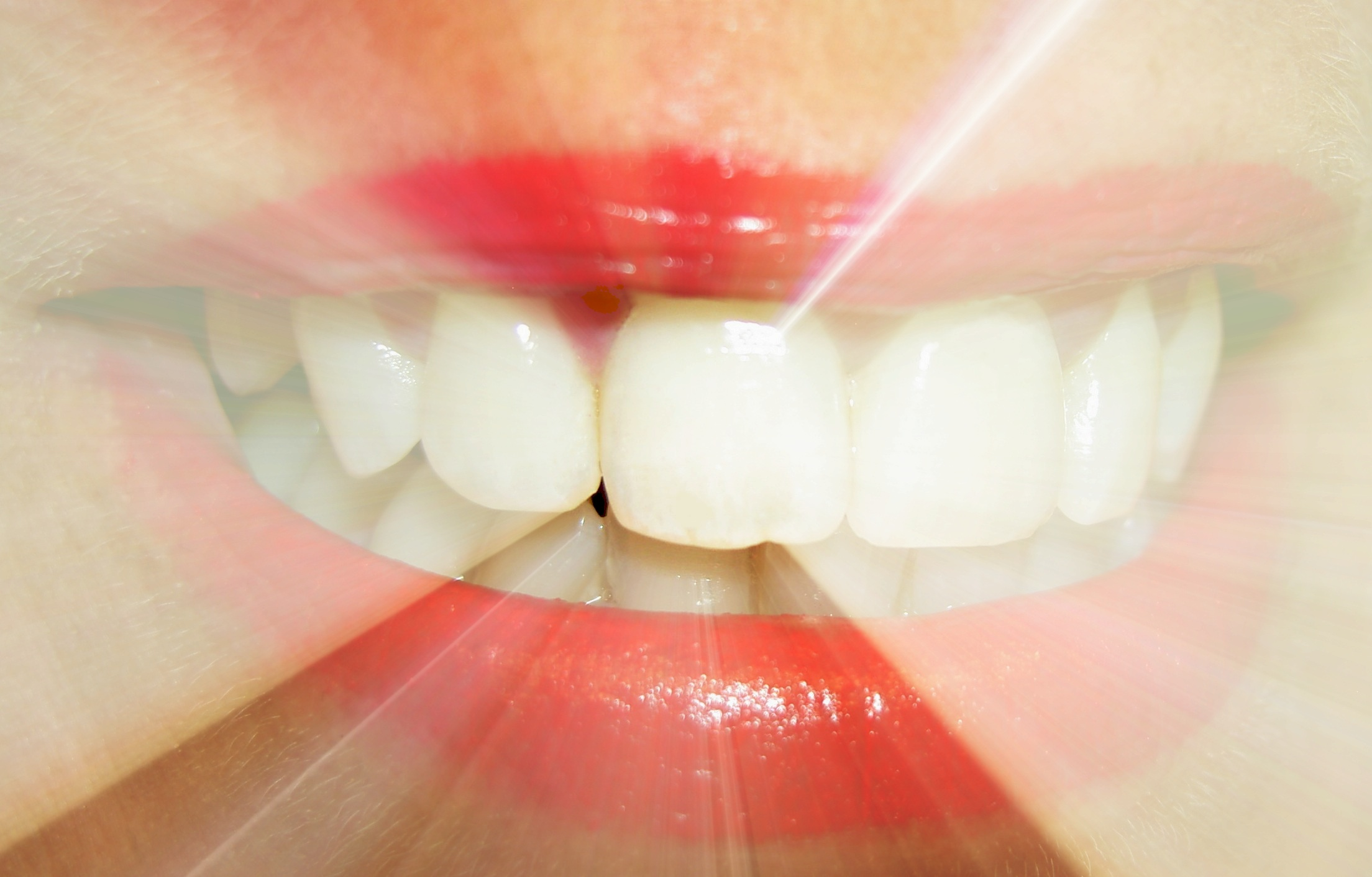 What dreams of tooth loss: the main interpretation of the dream